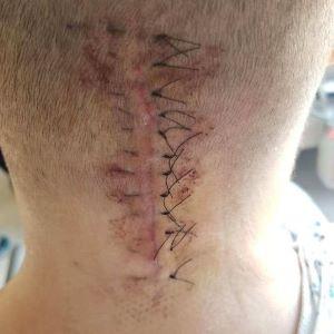 Spinal Fusion Scar