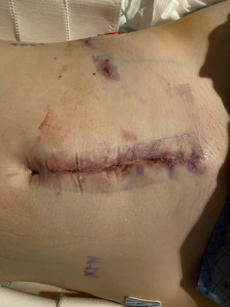 Auto transplant incision
