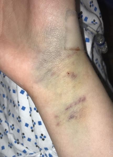 IV bruising